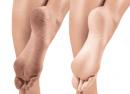 cracked-heels-1